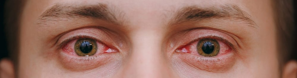 Why Does Weed Make Your Eyes Red?